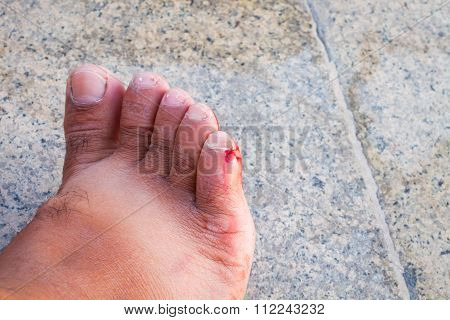 Incised Bloody Wound On The Foot Of A Man