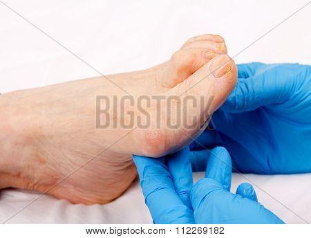 Feet Care