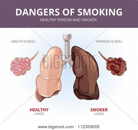Lungs and alveoli of a healthy person smoker. Vector medical diagram