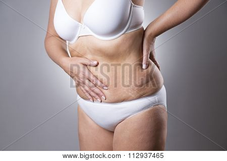 Woman In A White Bra And White Panties With Abdominal Pain On A Gray Background