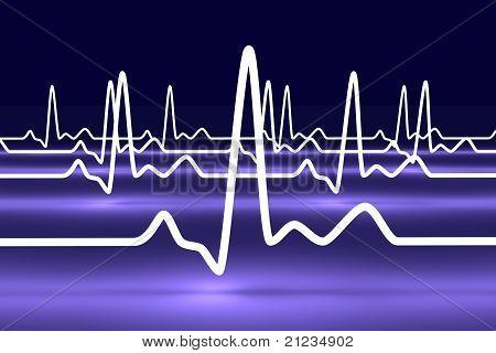 EKG Lines