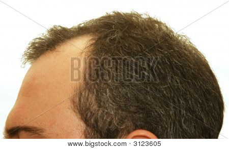 Glatze Kopf