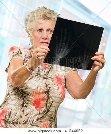 Senior Woman Holding X Ray Report, Outdoors