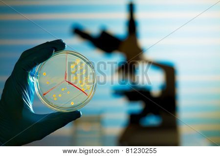 Petri dish in hand  and microscope  on laboratory background
