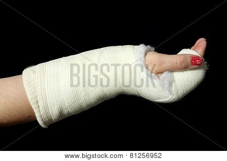 Orthopedic Cast