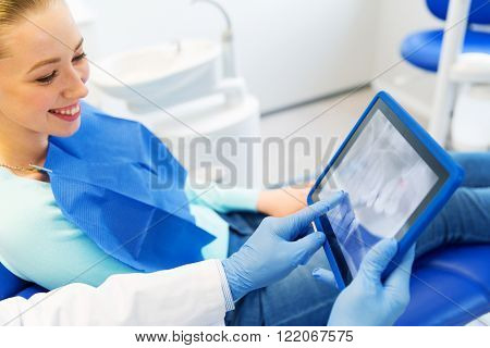 people, medicine, stomatology and health care concept - close up of dentist hands showing teeht x-ray on tablet pc computer to woman patient at dental clinic office