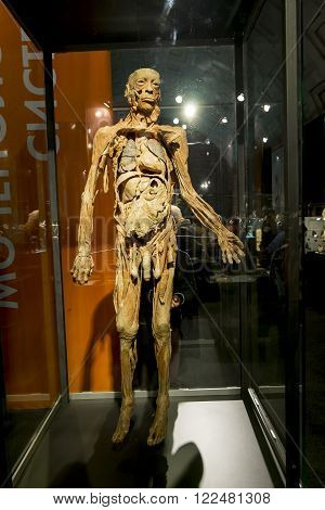 February 14 2016.Saint-Petersburg.Anatomical exhibits at the exhibition