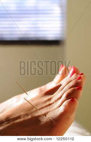 acupuncture at the foot