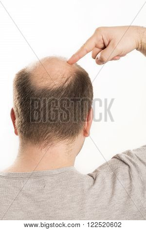 Baldness Alopecia man back hair loss haircare white background