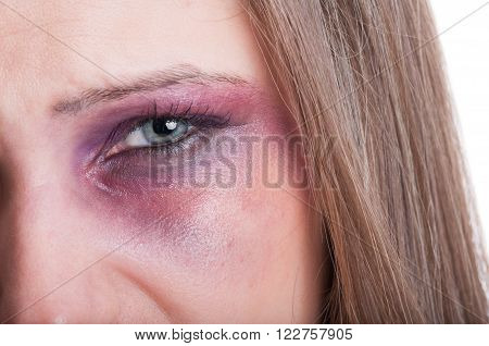 Closeup of a black eye of a beaten woman as a domestic violence victim