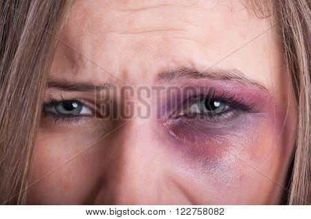 Sad Eyes Of A Domestic Violence Victim