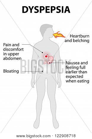 Indigestion or dyspepsia. stomach disease. Sign and symptoms