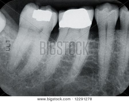 Lower Left Periodontal X-rays