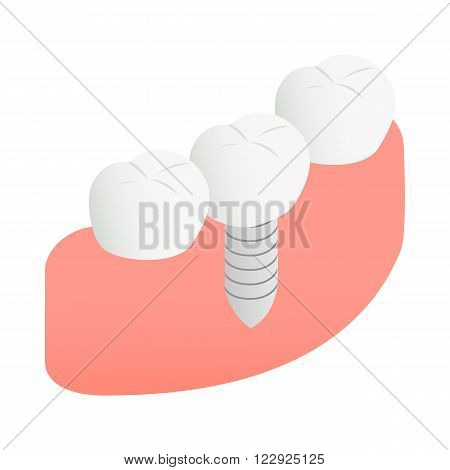 Tooth Implant icon in isometric 3d style on a white background