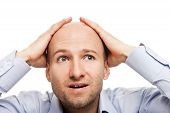 stock photo of hairline  - Surprised business man hand holding bald shaved head - JPG