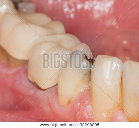 Macro Image Of Filled Teeth