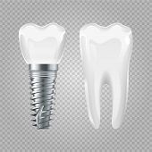 Dental Implant. Realistic Healthy Tooth And Implant. Vector Dental Surgery Elements. Tooth And Impla poster