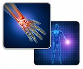 Human Hand Joint Pain Concept As Skeleton And Muscle Anatomy Of The Body With A Group Of Sore Wrist  poster