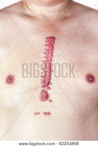 Hypertrophic Big Scar