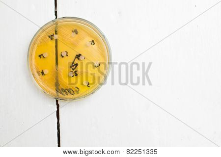 Petri Dish With Growing Bacteria