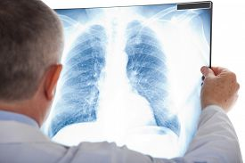 picture of pneumonia  - Doctor examining a lung radiography - JPG