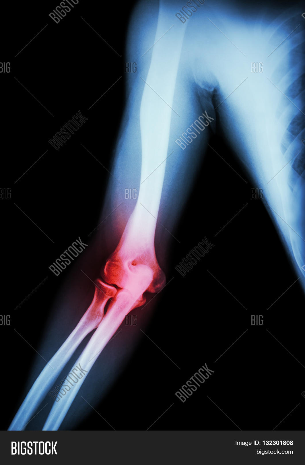 arthritis at x of arm forearm and