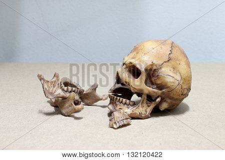tooth with caries Broken teeth human skull on wood background. - still life.