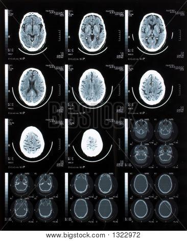 Gehirn-Tomographie