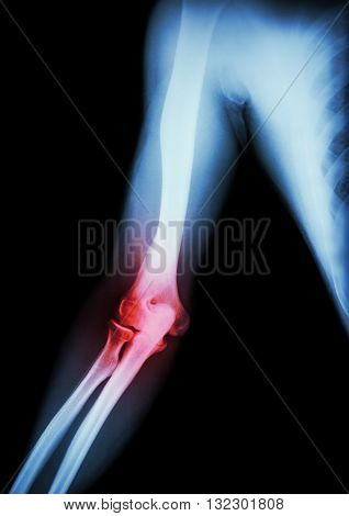 Arthritis at elbow . film x-ray of arm elbow forearm and inflammation at elbow ( Gouty arthritis , Rheumatoid arthritis ) ( black background )