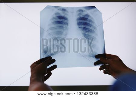 Holding x-ray