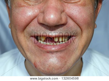 Ugly Man With Peeled Teeth Scratched Face