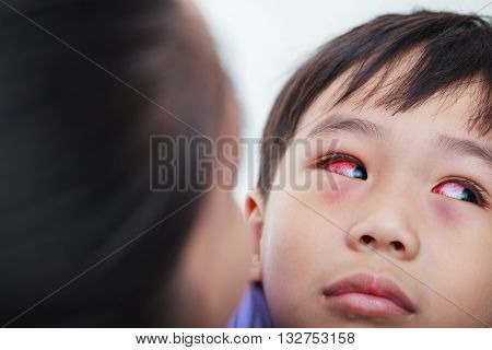Closeup of chronic conjunctivitis with a red iris. Doctor medical check up eye patient. Mother take care her son
