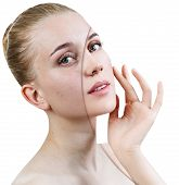 Comparison Portrait Of Young Girl With Acne Before And After Retouch. poster