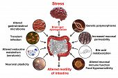 Pathophysiology Of Irritable Bowel Syndrome Ibs, 3d Illustration Showing Mechanisms Of Ibs Developme poster