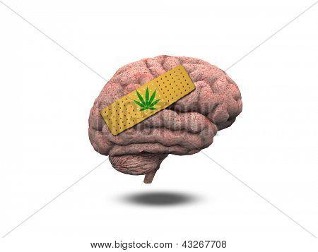 Wounded Brain with Marijuana Leaf