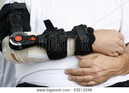 Broken arm support