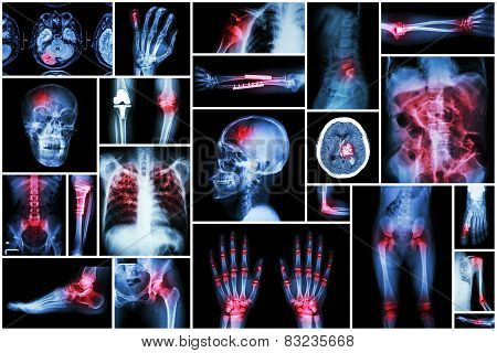 X-ray Multiple Disease