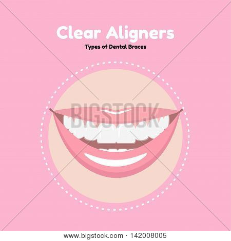 Clear Dental Alighers. Types of Dental Braces. Vector flat illustration of smile with alighers on the teeth.