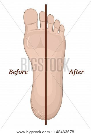 Illustration legs with cracks on the skin before and after treatment