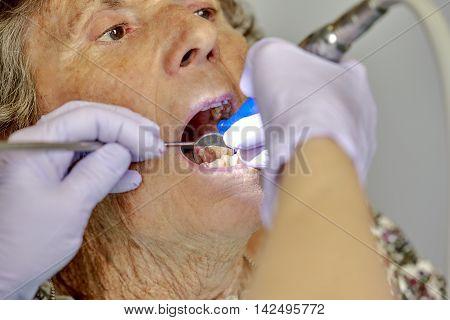 Elderly Woman Gettng Dental Work Done On Her Teeth