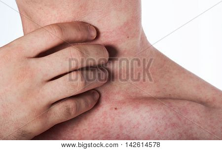 Man Scratching His Neck With Rash