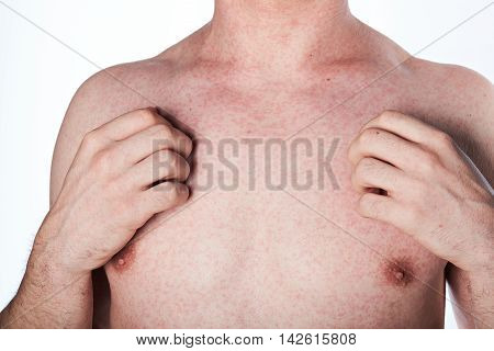Man Scratching His Chest