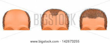 illustration of a male head suffering from baldness. hair transplantation