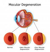 Macular Degeneration Vector Medical Diagram With Eye Anatomy Internal Structure Illustration And Eye poster