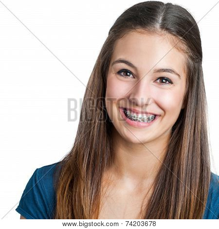 Smiling Teen Girl Showing Dental Braces.