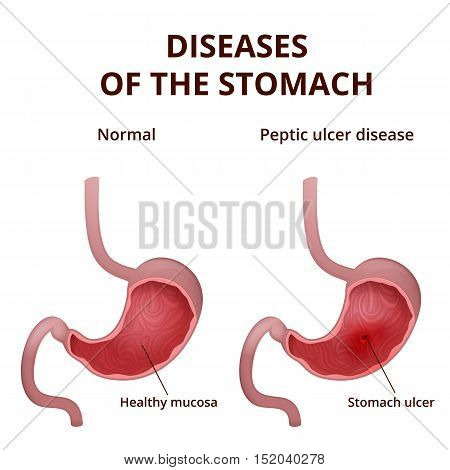 medical poster with a detailed diagram of the structure from the inside of the stomach, digestive system diseases - ulcer