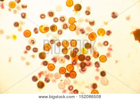 Eggs of tapeworm Taenia pork tapeworm , a helminth transmitted to humans by raw or undercooked meat. Light microphotograph, magnification X100