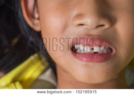 kid patient open mouth showing cavities .