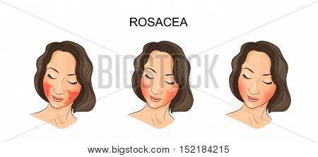 illustration of girl's face damaged rosacea. dermatology