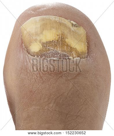 Fungus Infection on Nails of a Man's Toe Isolated